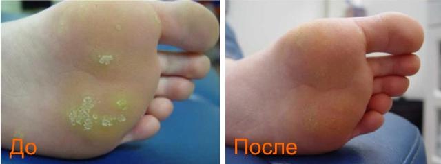 фото до и после удаления подошвенных бородавок