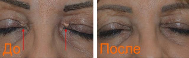 фото до и после удаления ксантелазмы