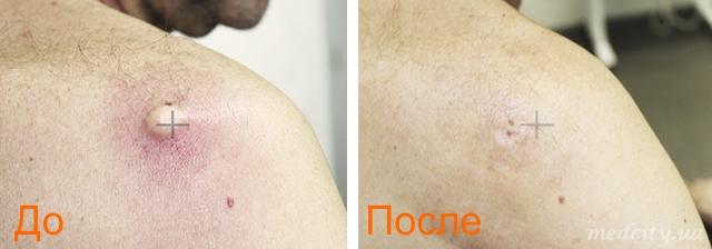 фото до и после удаления атеромы лазером