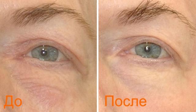 лазерная блефопластика фото до и после
