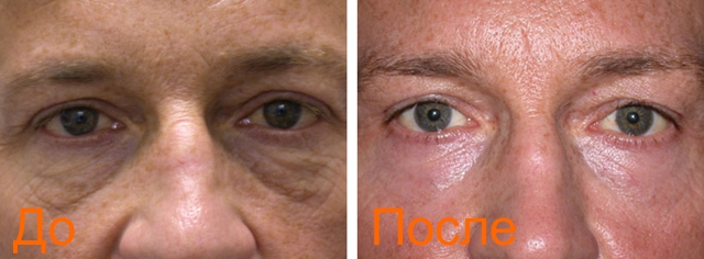 фото до и после лазерной блефаропластики лица