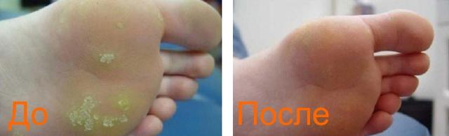 удаление сухих мозолей: фото до и после