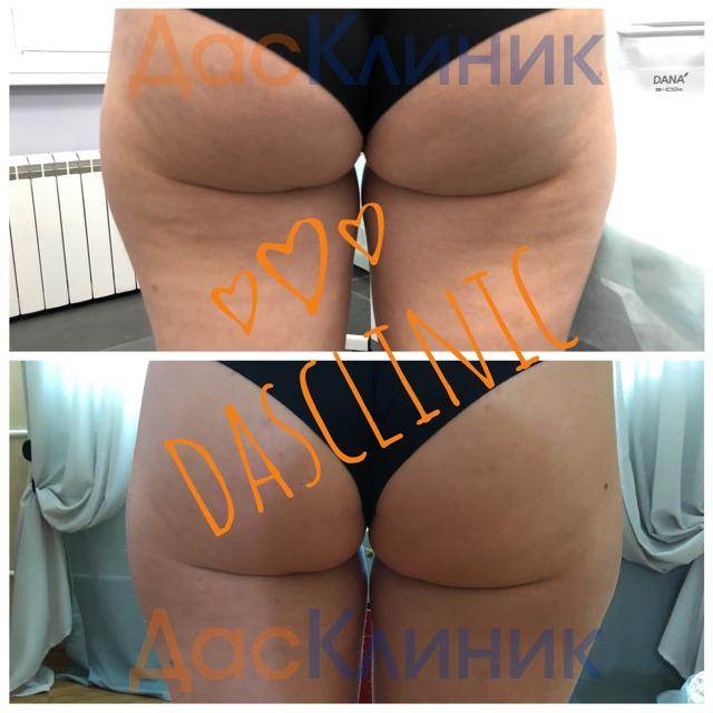 фото до и после инъекций Promoitalia Revital Celluform