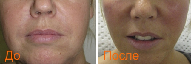 фото до и после Promoitalia Revital Celluform