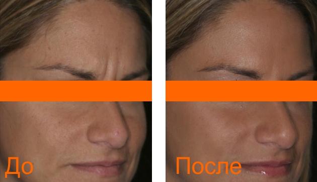 фото до и после процедуры гиалтокс