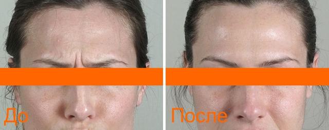 фото до и после гиалтокса