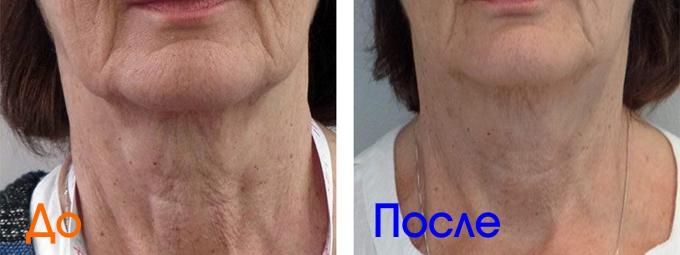 фото до и после препарата Profhilo