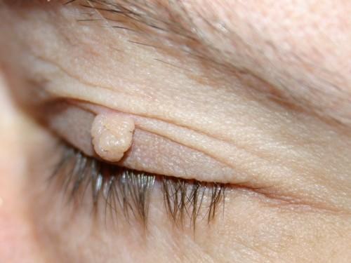 Фиброма на носу удаление 31