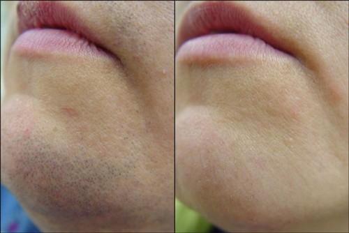 удаление нежелательных волос: фото до и после процедуры