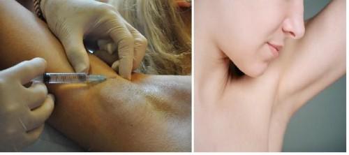 лечение гипергидроза подмышек: фото до и после