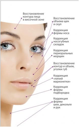 контурная пластика лица: фото до и после процедуры