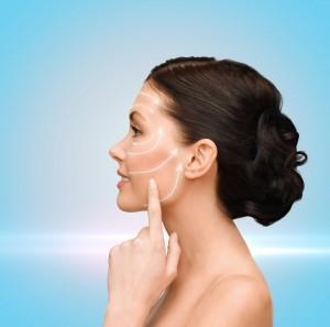 Мезонити 3D: фотография лица после процедуры