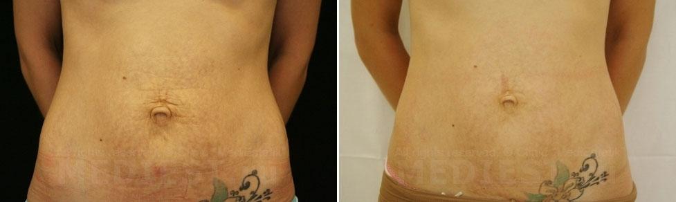 фото после удаления растяжки и шрама